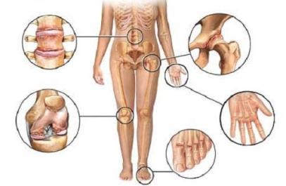 artrit1