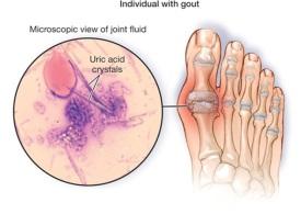 Gout in toe