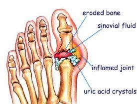 Gout-joints