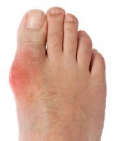 gout-picture